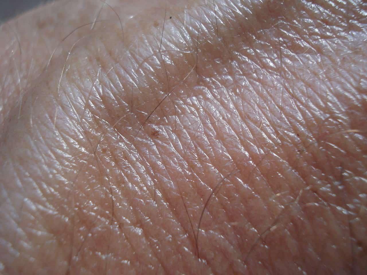 Weisser Hautkrebs